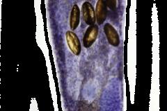 Hymenocotta-manteri